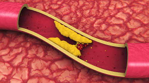 cholesterol-in-the-bloodstream