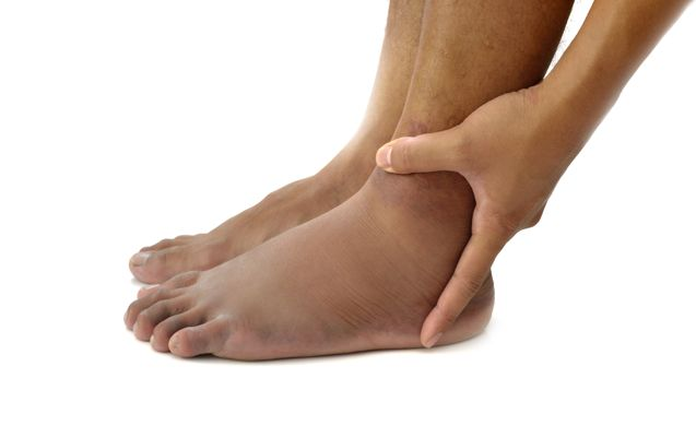 Causes of edema to ankles 2014
