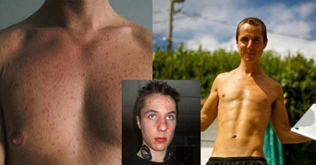 chest_and_face-beforeafter